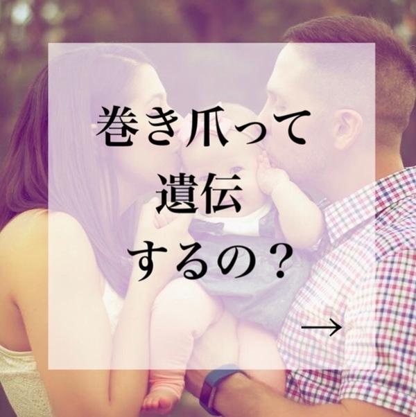 【大泉町ネイルサロン】巻き爪って遺伝するの?