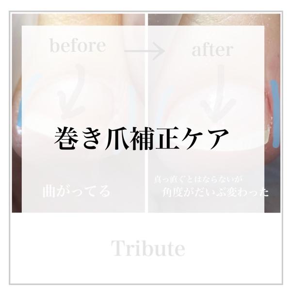 【大泉町ネイルサロン】巻き爪補正ケア