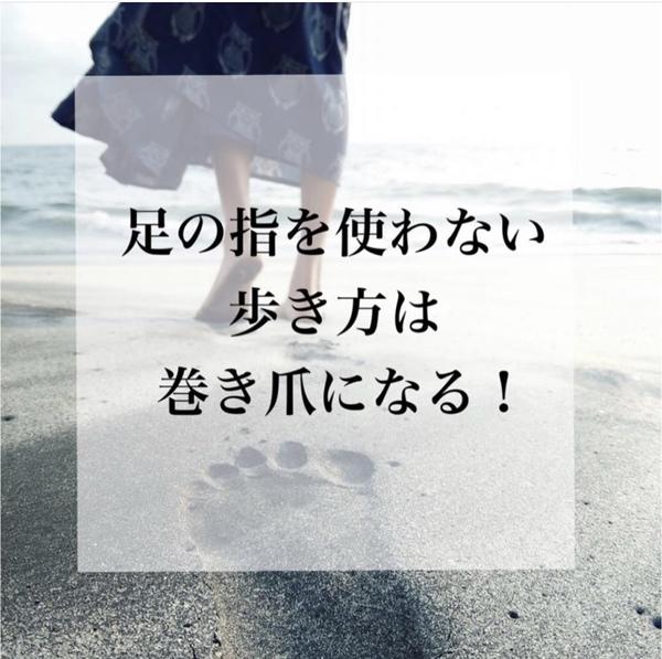【大泉町 ネイルサロン】足の指を使わない歩き方は巻き爪になる!